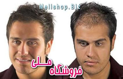 http://nyazmarket.com/images/pezeshki.salamat/hi-hair/toppic-hi-hair-5.jpg
